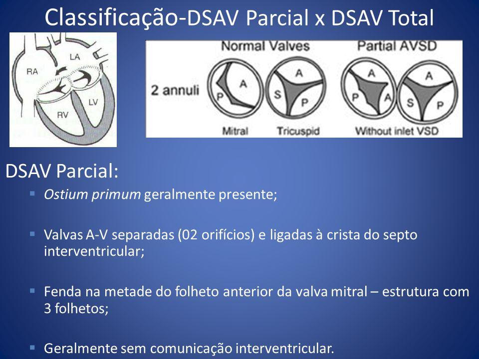 Classificação-DSAV Parcial x DSAV Total