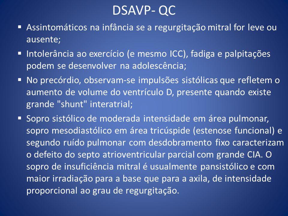 DSAVP- QC Assintomáticos na infância se a regurgitação mitral for leve ou ausente;