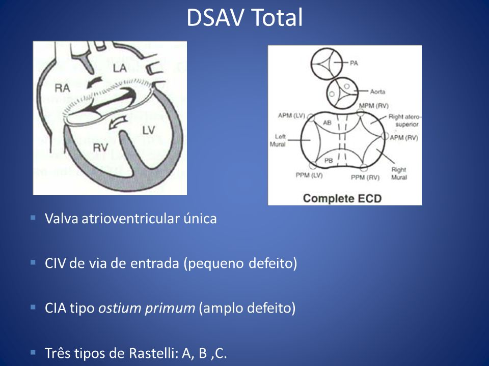 DSAV Total Valva atrioventricular única