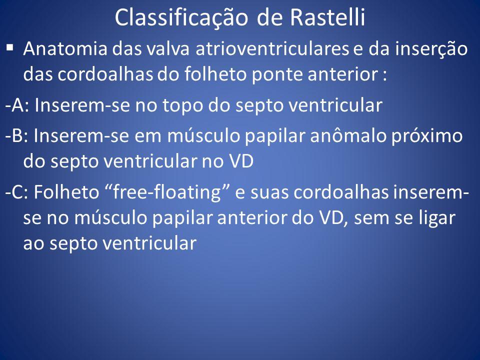 Classificação de Rastelli