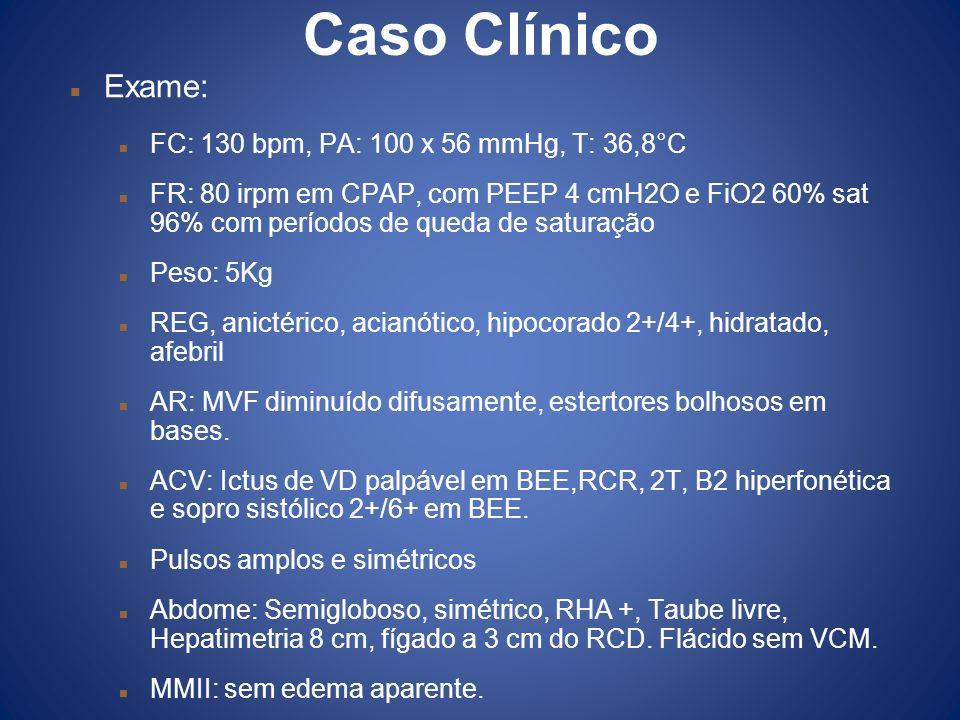 Caso Clínico Exame: FC: 130 bpm, PA: 100 x 56 mmHg, T: 36,8°C
