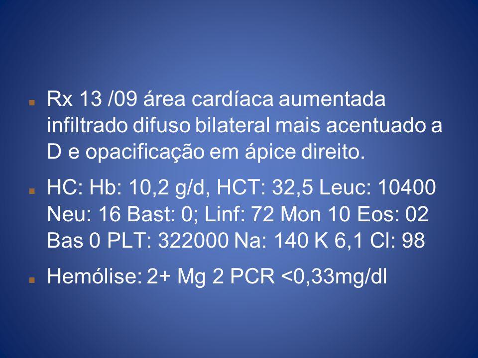 Rx 13 /09 área cardíaca aumentada infiltrado difuso bilateral mais acentuado a D e opacificação em ápice direito.