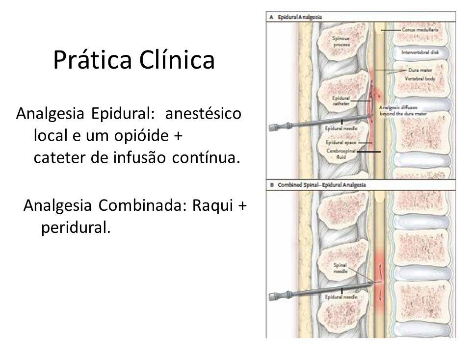 Prática Clínica Analgesia Epidural: anestésico local e um opióide + cateter de infusão contínua. Analgesia Combinada: Raqui + peridural.