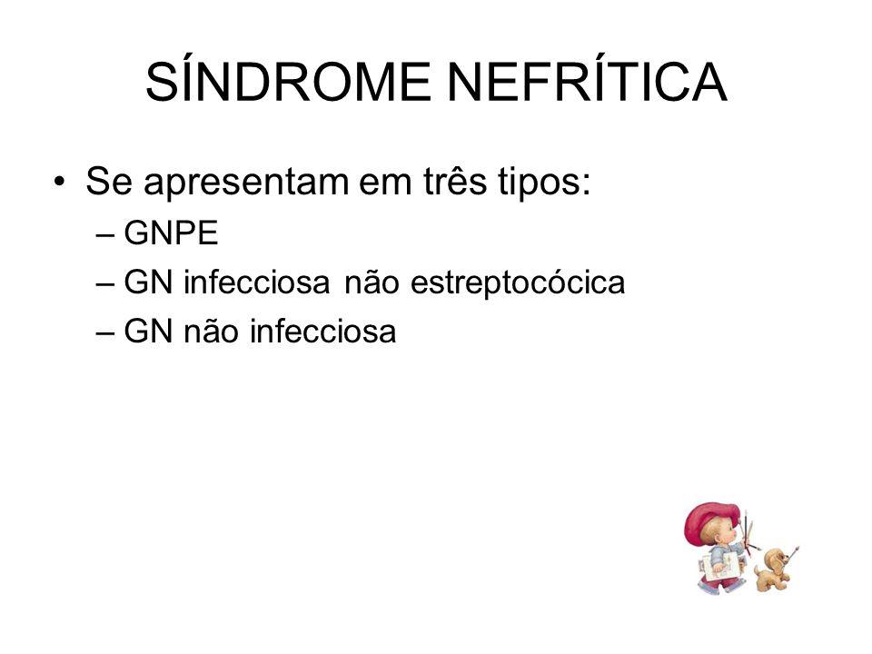 SÍNDROME NEFRÍTICA Se apresentam em três tipos: GNPE