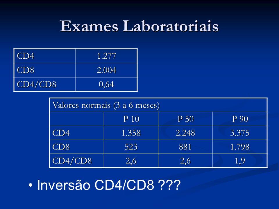 Exames Laboratoriais Inversão CD4/CD8 CD4 1.277 CD8 2.004 CD4/CD8