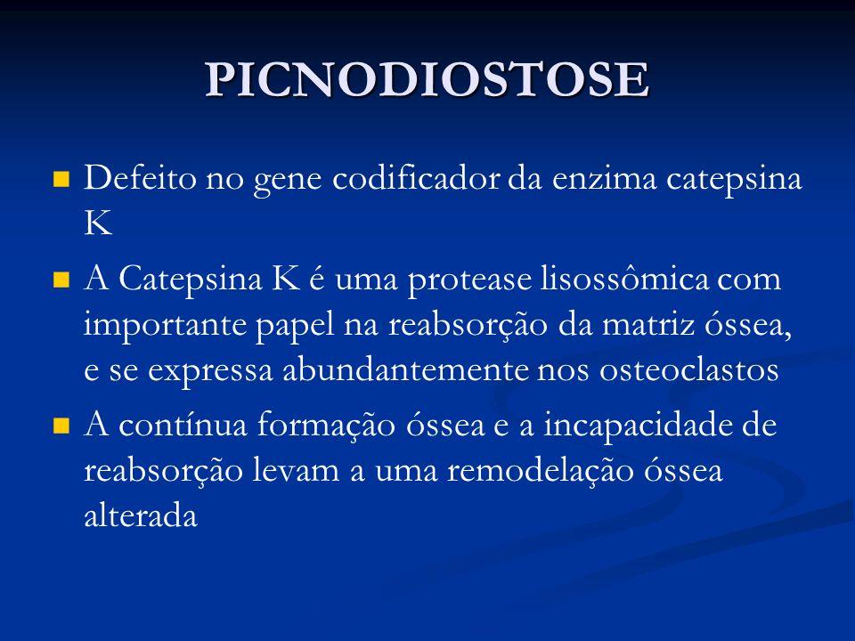 PICNODIOSTOSE Defeito no gene codificador da enzima catepsina K