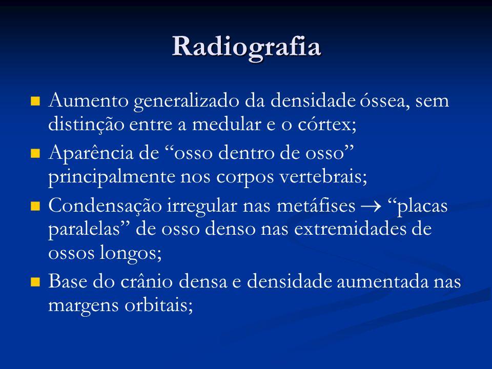 Radiografia Aumento generalizado da densidade óssea, sem distinção entre a medular e o córtex;