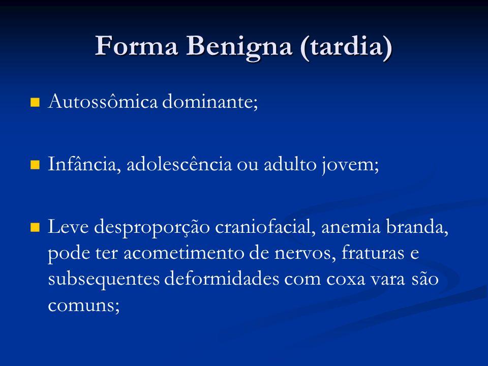 Forma Benigna (tardia)