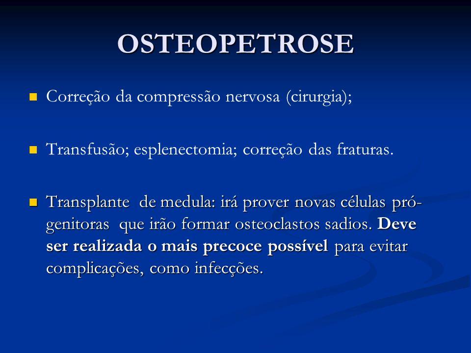 OSTEOPETROSE Correção da compressão nervosa (cirurgia);