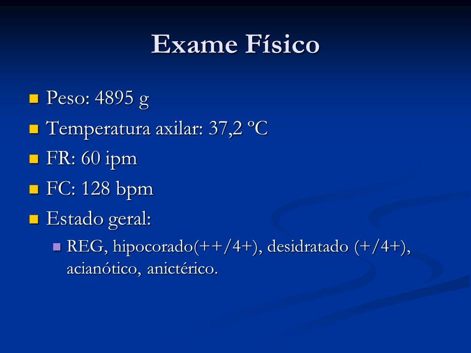 Exame Físico Peso: 4895 g Temperatura axilar: 37,2 ºC FR: 60 ipm