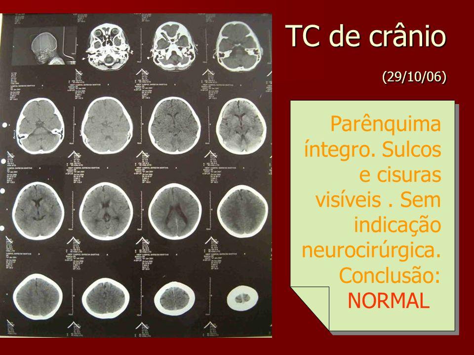TC de crânio (29/10/06) Parênquima íntegro. Sulcos e cisuras visíveis . Sem indicação neurocirúrgica.