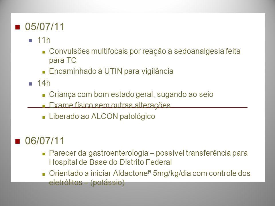 05/07/11 11h. Convulsões multifocais por reação à sedoanalgesia feita para TC. Encaminhado à UTIN para vigilância.