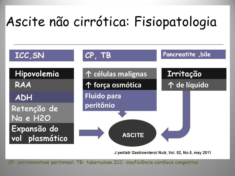 Ascite não cirrótica: Fisiopatologia