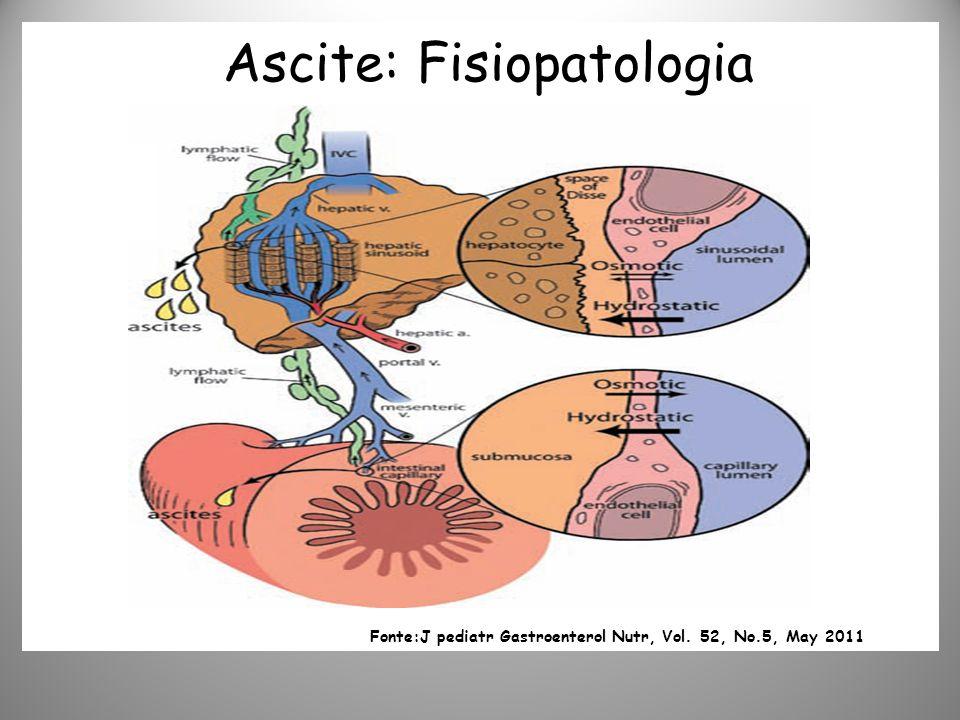 Ascite: Fisiopatologia