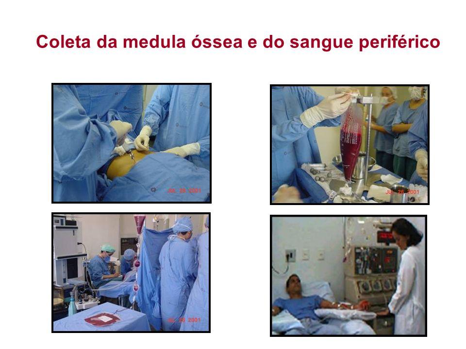 Coleta da medula óssea e do sangue periférico