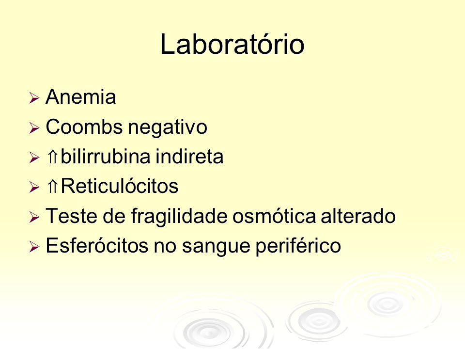 Laboratório Anemia Coombs negativo ⇑bilirrubina indireta