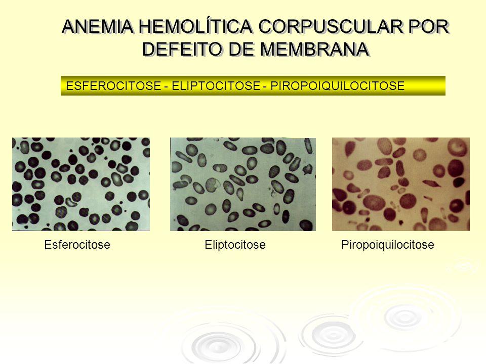 ANEMIA HEMOLÍTICA CORPUSCULAR POR DEFEITO DE MEMBRANA