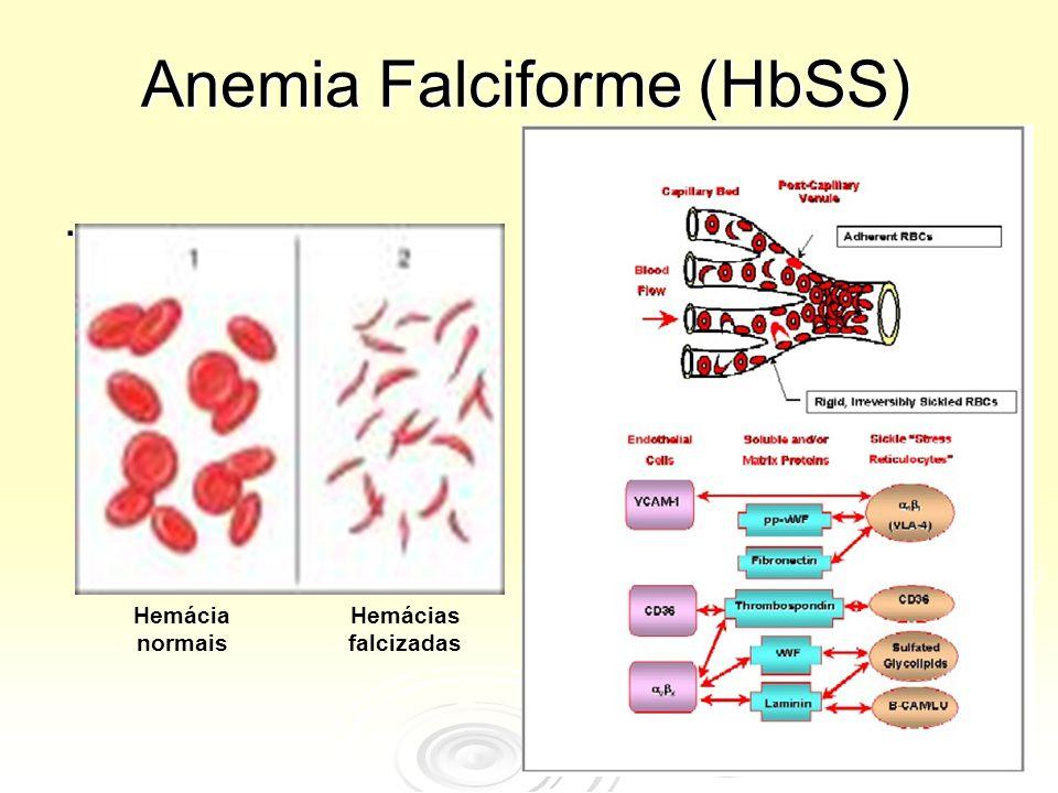 Anemia Falciforme (HbSS)