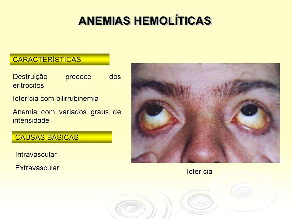 ANEMIAS HEMOLÍTICAS CARACTERÍSTICAS Destruição precoce dos eritrócitos