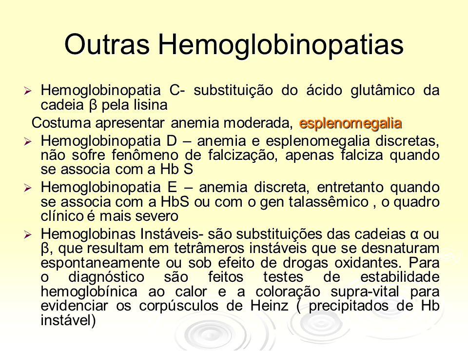 Outras Hemoglobinopatias