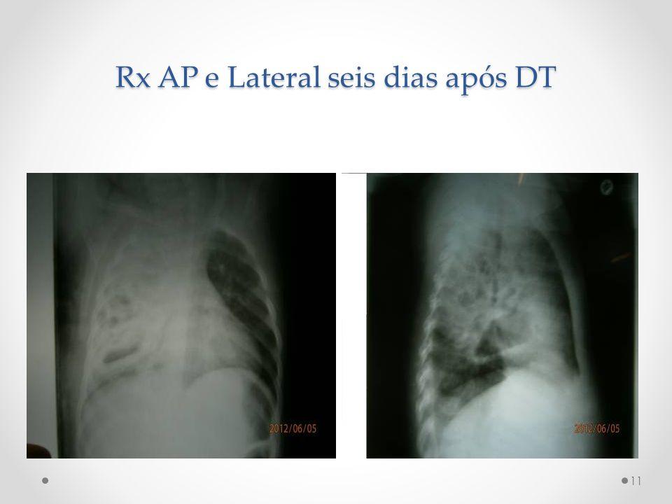 Rx AP e Lateral seis dias após DT