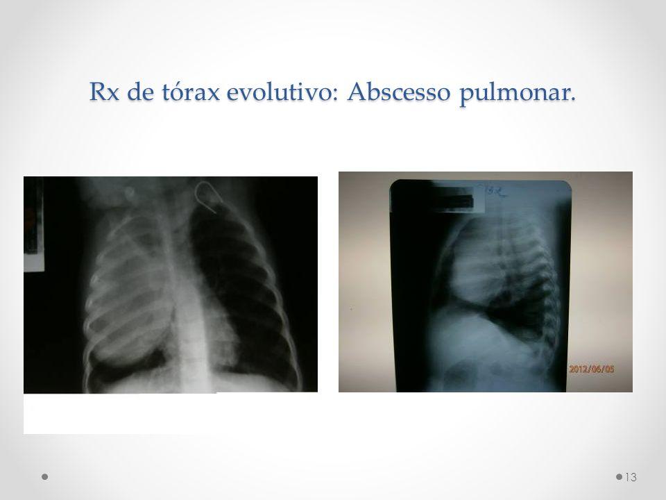 Rx de tórax evolutivo: Abscesso pulmonar.