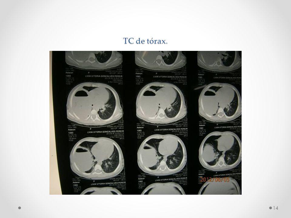 TC de tórax.