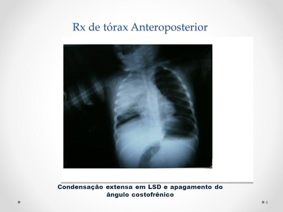 Rx de tórax Anteroposterior