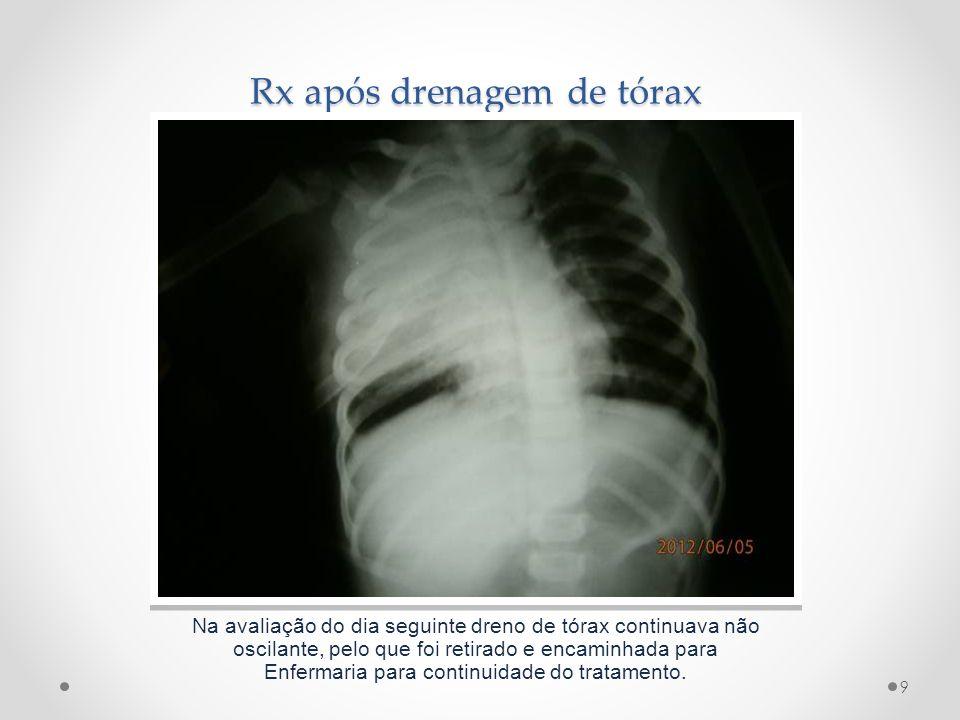 Rx após drenagem de tórax