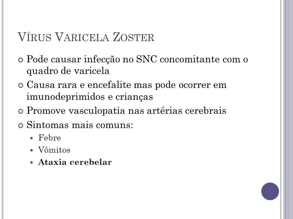 Vírus Varicela Zoster Pode causar infecção no SNC concomitante com o quadro de varicela.
