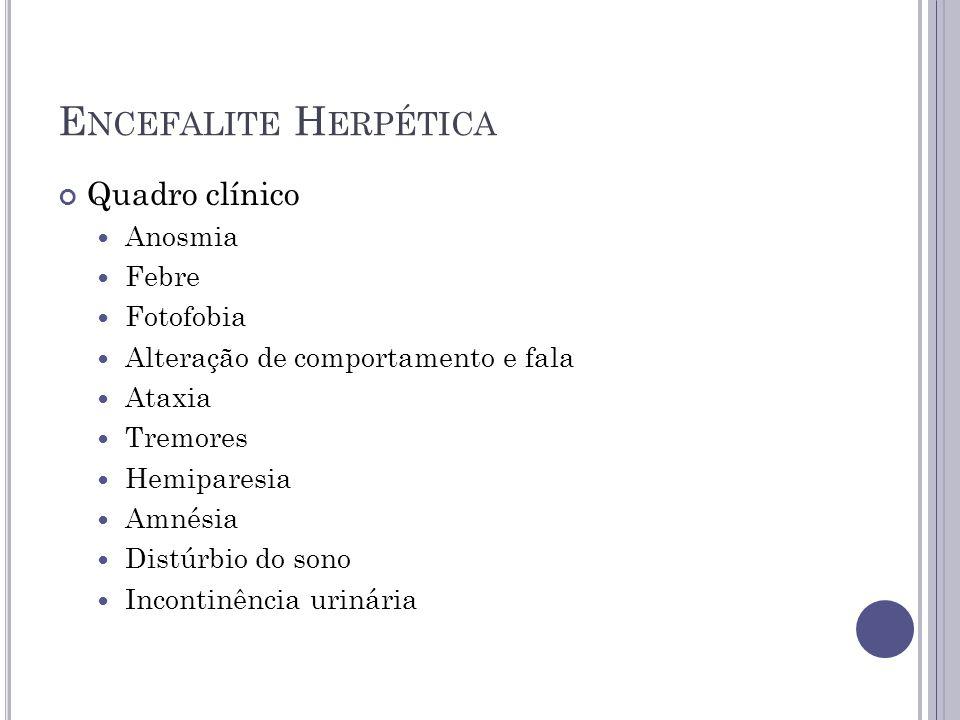 Encefalite Herpética Quadro clínico Anosmia Febre Fotofobia