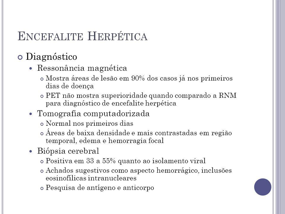 Encefalite Herpética Diagnóstico Ressonância magnética