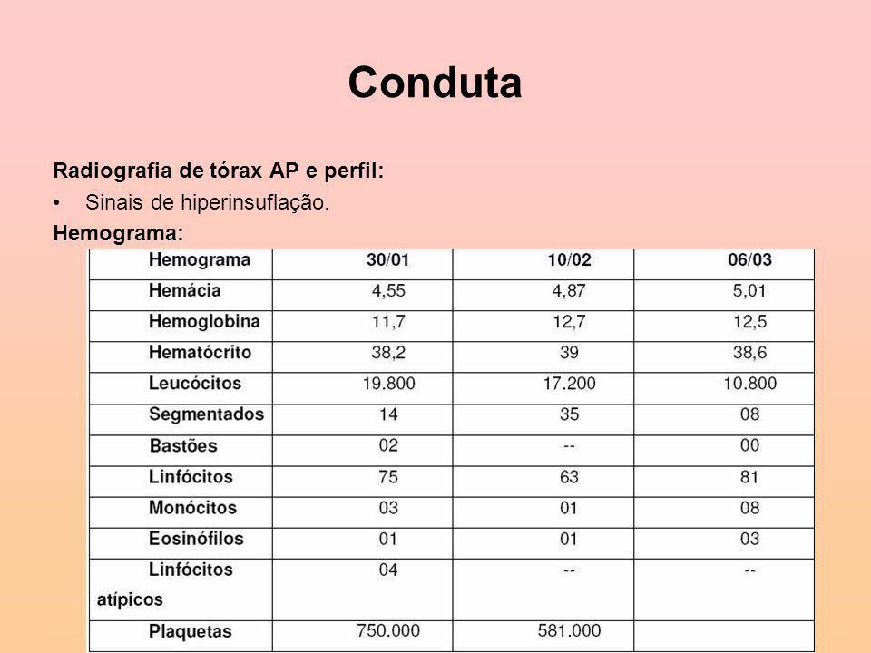 Conduta Radiografia de tórax AP e perfil: Sinais de hiperinsuflação.