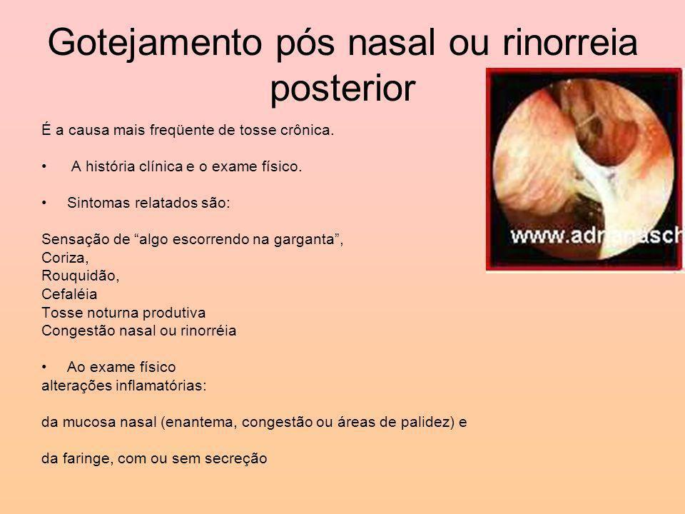 Gotejamento pós nasal ou rinorreia posterior