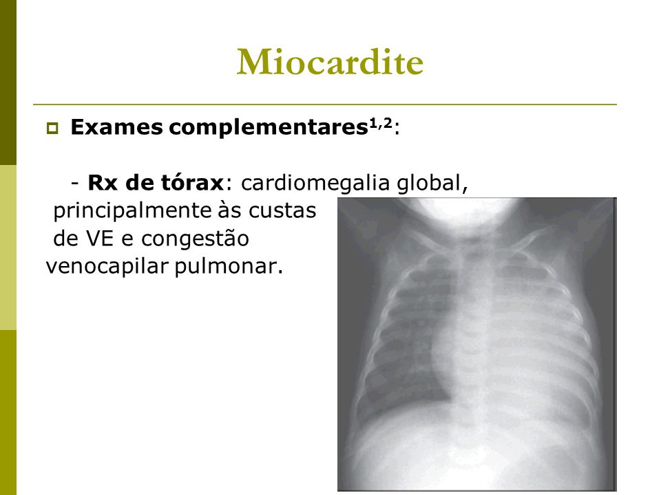 Miocardite Exames complementares1,2: