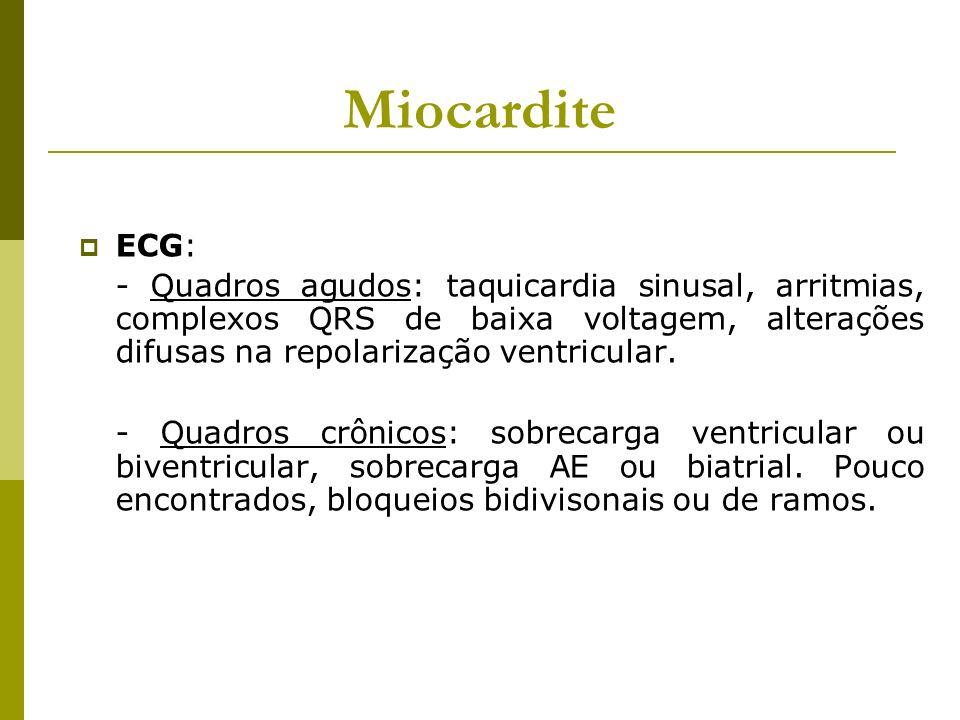 Miocardite ECG: - Quadros agudos: taquicardia sinusal, arritmias, complexos QRS de baixa voltagem, alterações difusas na repolarização ventricular.