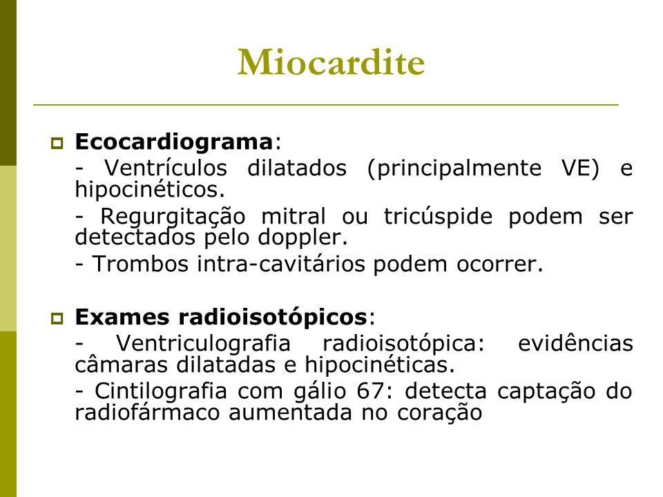 Miocardite Ecocardiograma: