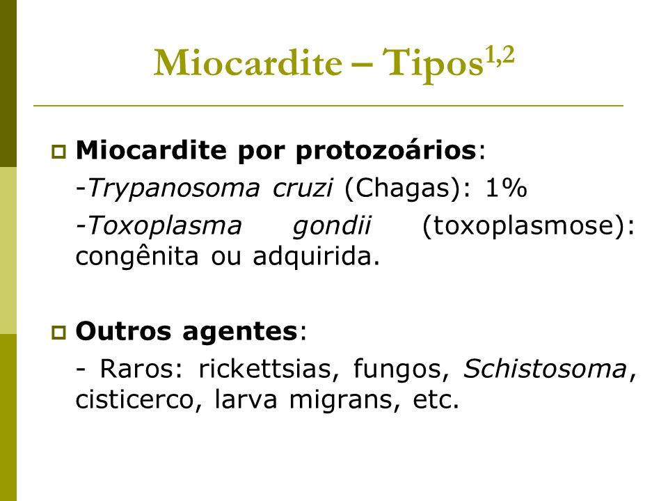 Miocardite – Tipos1,2 Miocardite por protozoários: