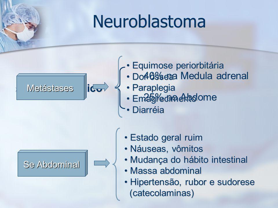 Neuroblastoma Quadro Clínico 40% na Medula adrenal 25% no Abdome