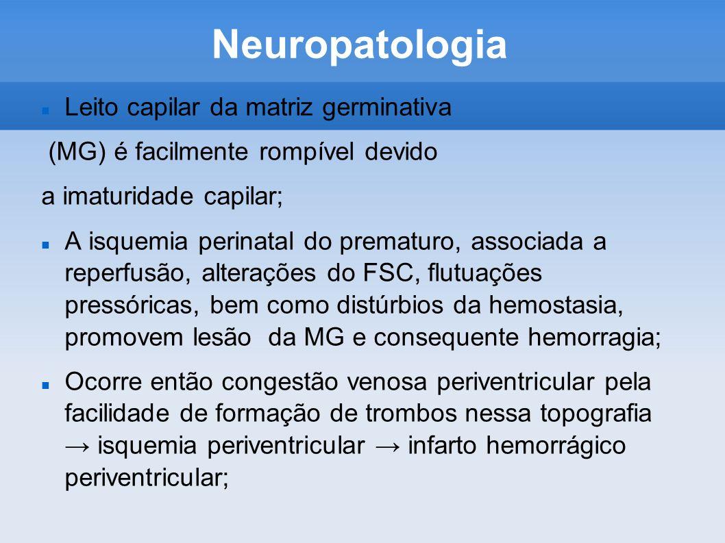 Neuropatologia Leito capilar da matriz germinativa