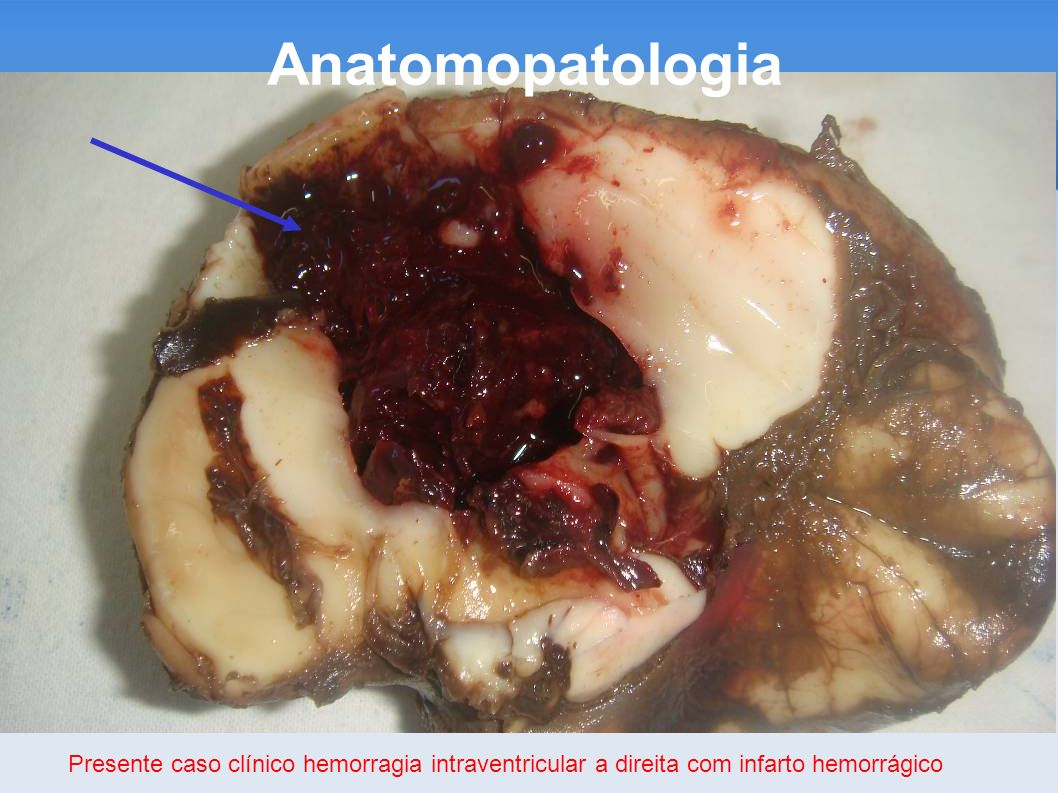 Anatomopatologia Presente caso clínico hemorragia intraventricular a direita com infarto hemorrágico.