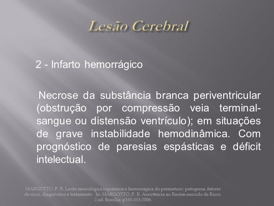 Lesão Cerebral 2 - Infarto hemorrágico