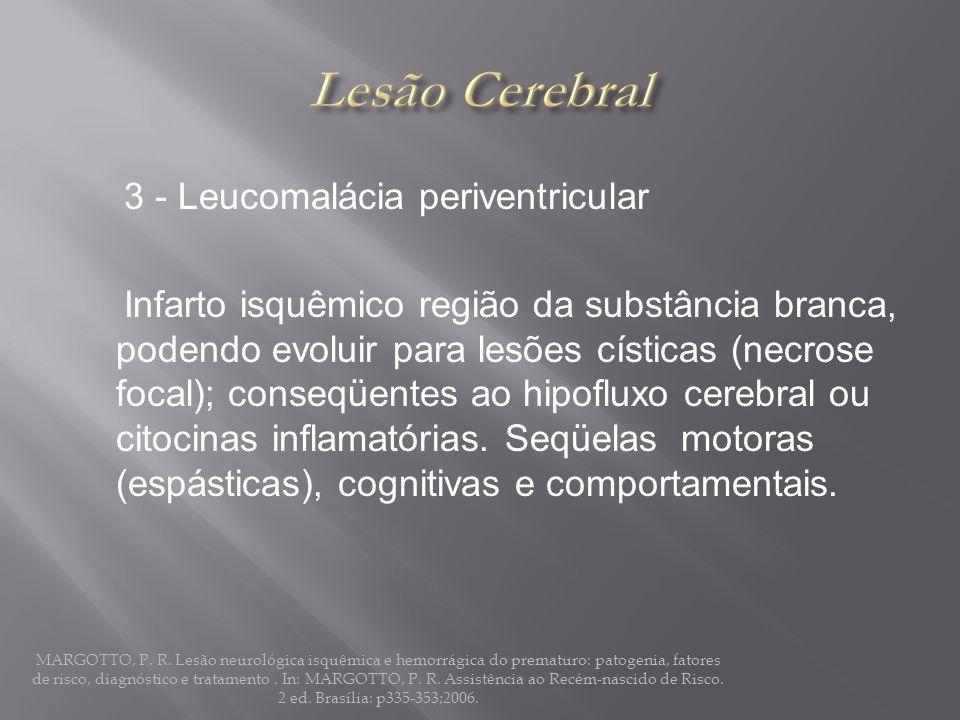 3 - Leucomalácia periventricular