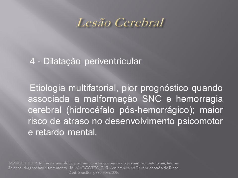 Lesão Cerebral 4 - Dilatação periventricular
