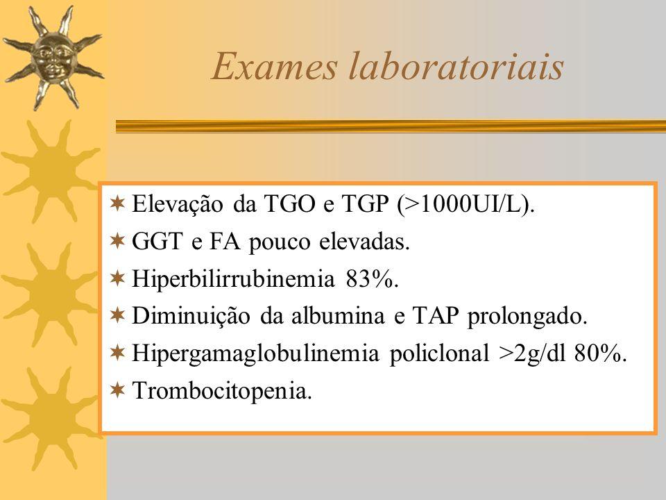 Exames laboratoriais Elevação da TGO e TGP (>1000UI/L).