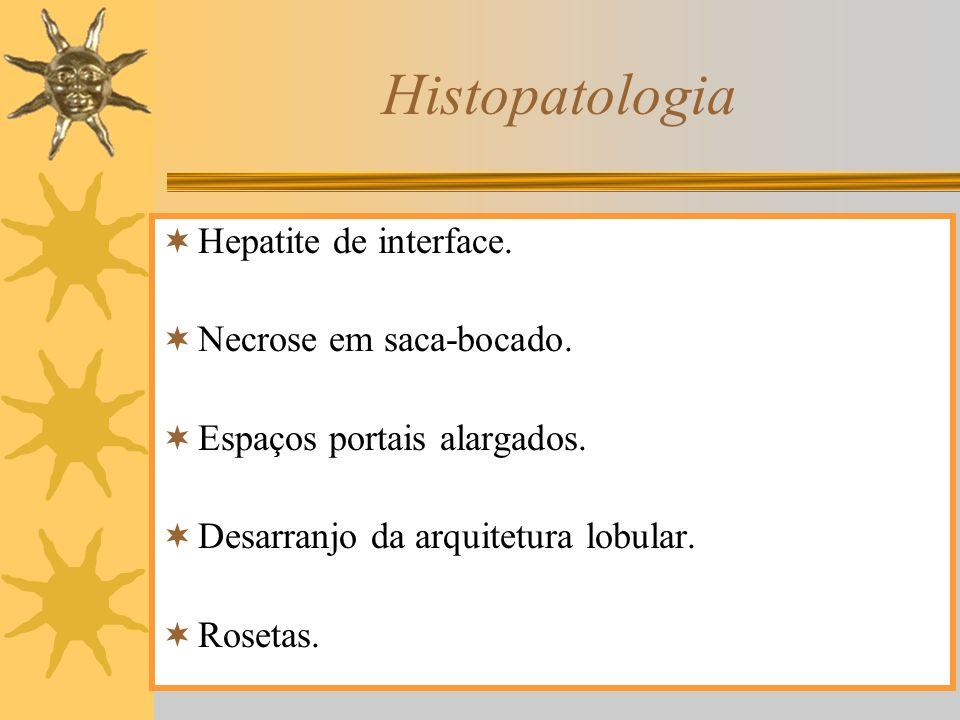 Histopatologia Hepatite de interface. Necrose em saca-bocado.