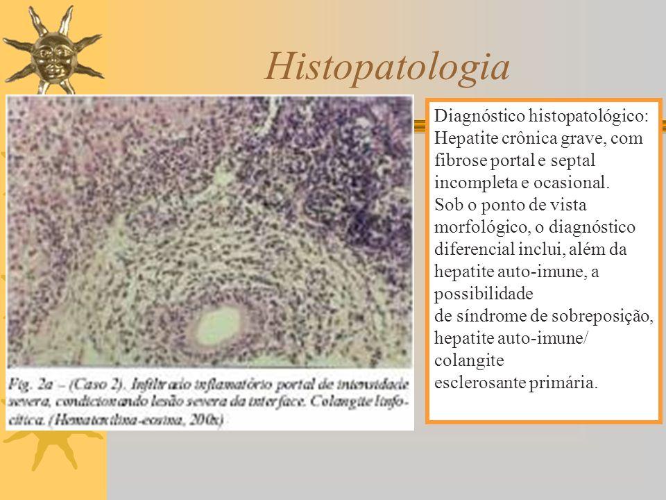 Histopatologia Diagnóstico histopatológico: Hepatite crônica grave, com. fibrose portal e septal incompleta e ocasional.