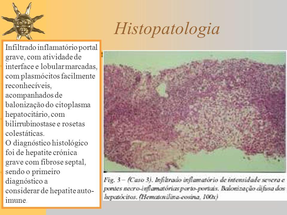 Histopatologia Infiltrado inflamatório portal grave, com atividade de interface e lobular marcadas, com plasmócitos facilmente reconhecíveis,