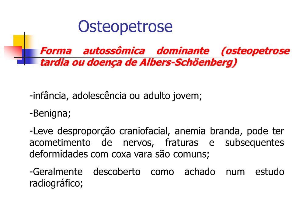 Osteopetrose Forma autossômica dominante (osteopetrose tardia ou doença de Albers-Schöenberg) infância, adolescência ou adulto jovem;