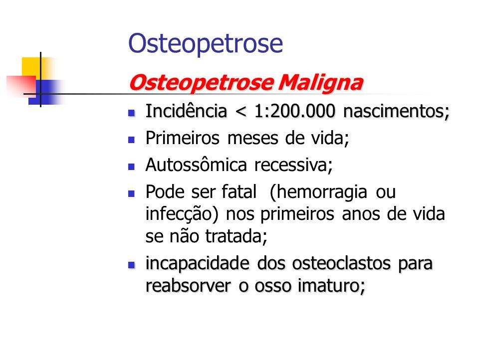 Osteopetrose Osteopetrose Maligna